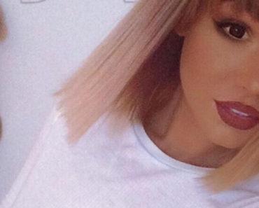Ez a 24 éves lány a barnulás megszállottjává vált  – az orvosok figyelmeztették, ha nem fejezi be bele is halhat